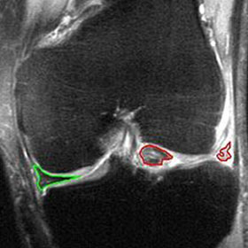 buckle-tear-of-cartilage-in-knee
