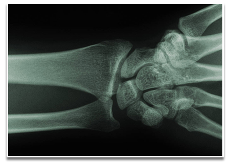 joint_wrist xray