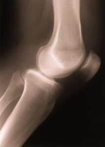 x ray side view of human knee