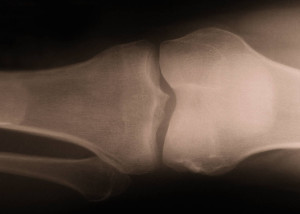 xray close up view of human knee